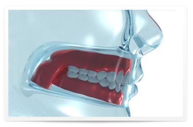 framed-model-dentures